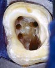 endodontie1