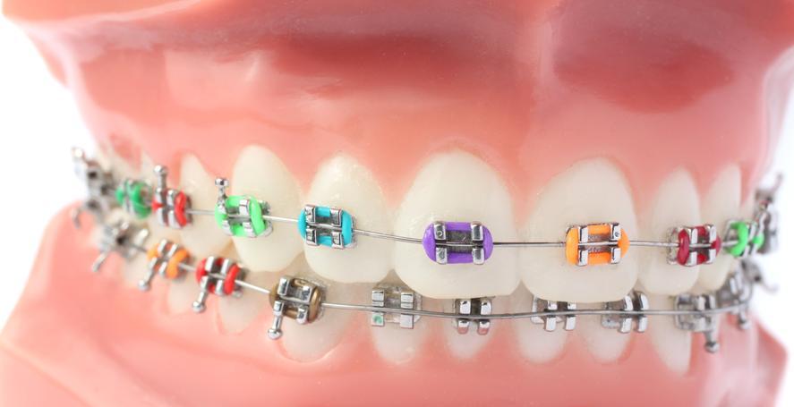 Ortodontie - brecheti colorati
